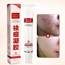 Meikang, Fendai, herbal oil control, repair and cure acne marks and scars